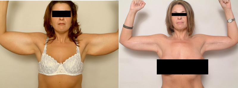 , Arm Rejuvenation