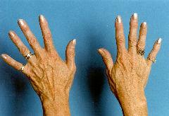 , Hand Rejuvenation