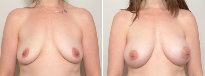 breast-KR1