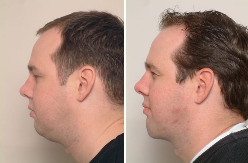 , Male Buccal Fat Pad Excision