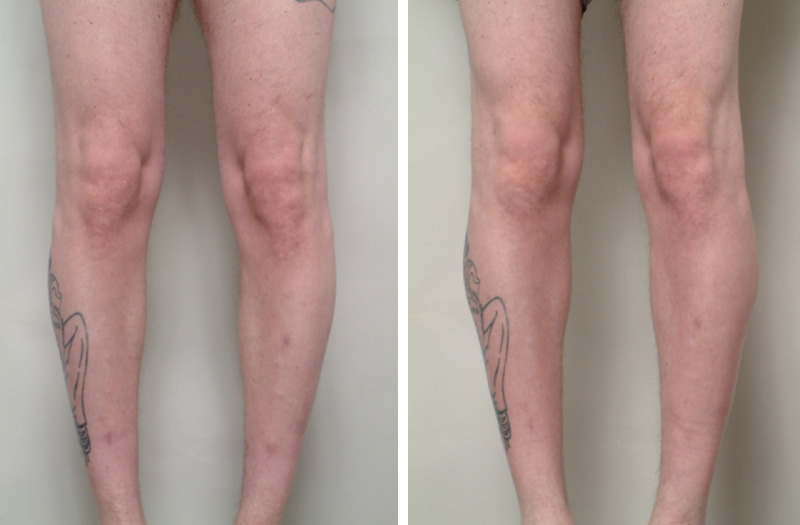 male_calf_implant1