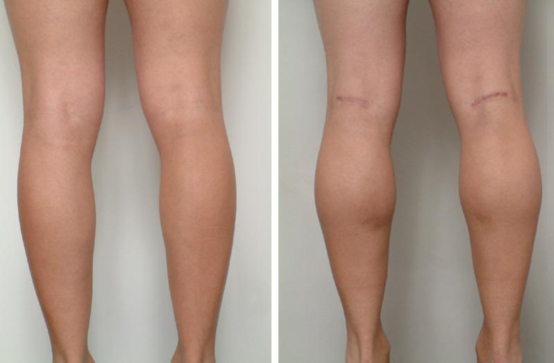 male_calf_implants_3