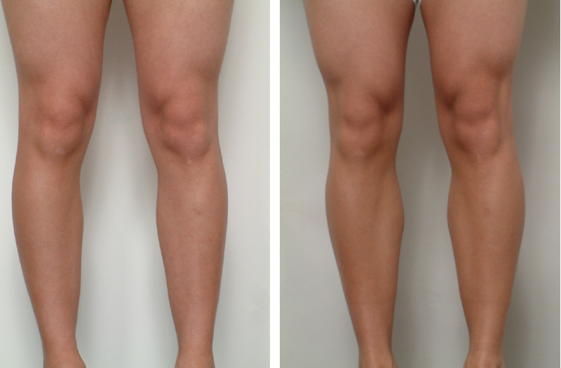, Male Calf Enlargement