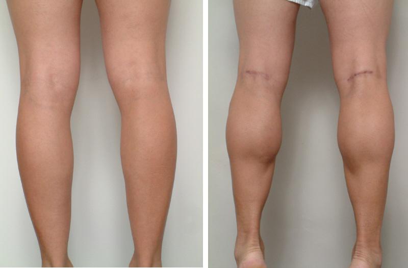 male_calf_implants_5