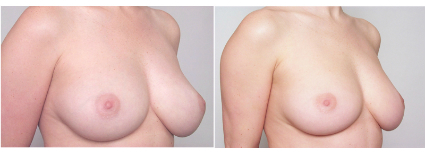 Breast Liposuction Before & After, San Francisco CA
