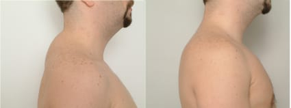 Before & After Buffalo Hump Surgery, San Francisco CA