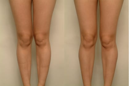 Before & After Calf Implants, San Francisco CA
