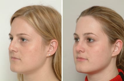 Before & After Cosmetic Surgery, San Francisco CA