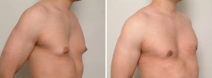 Before & After Gynecomastia, San Francisco CA