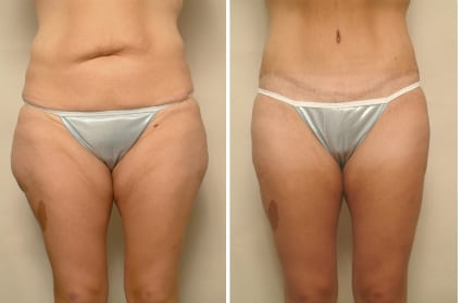 Liposculpture - Before & After Photos, San Francisco CA