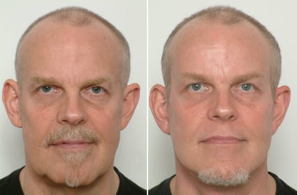 Male Plastic Surgery Before & After, San Francisco CA