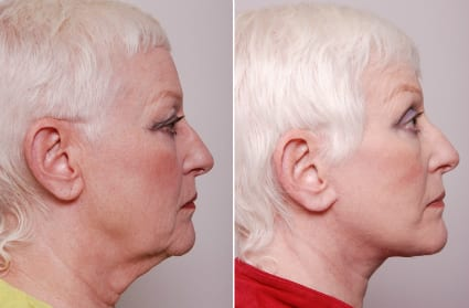 Necklift Before & After Photos, San Francisco CA