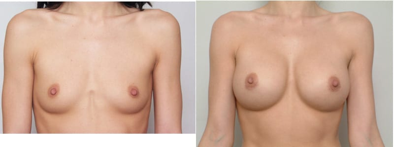 Before & After Breast Augmentation, San Francisco CA