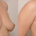 , Fat Grafting to the Breast